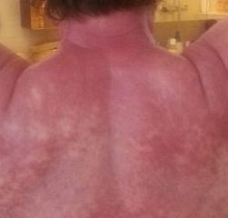 Huden blev blåröd och klådan var outhärdlig.